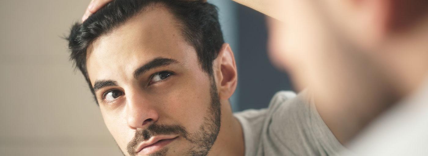 qué es la alopecia y tipos de alopecia