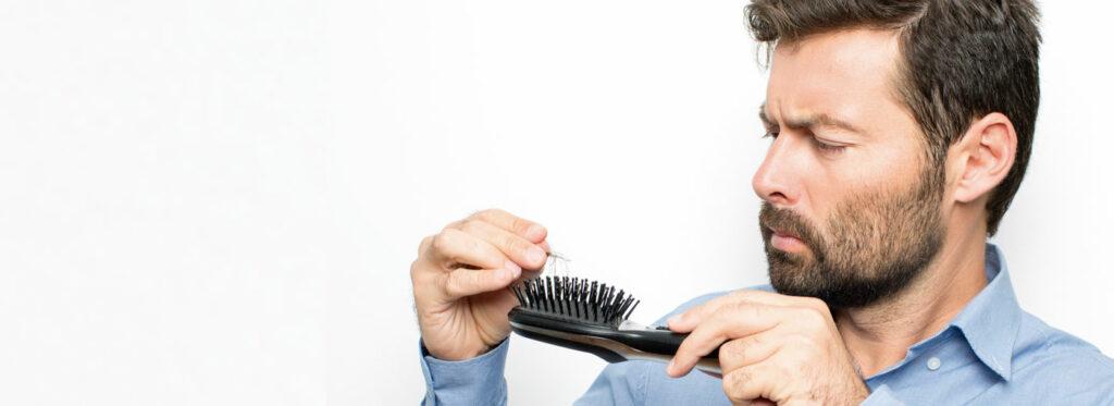 causas frecuentes caída del pelo