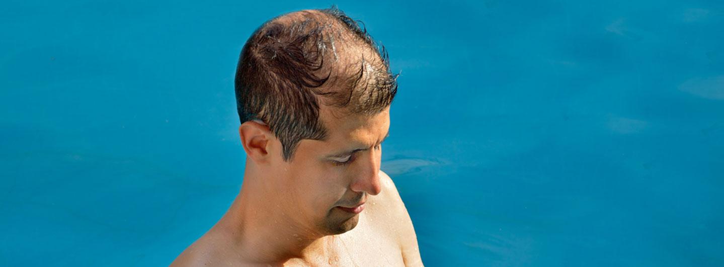 la calvicie es un factor de riesgo para el cáncer de piel
