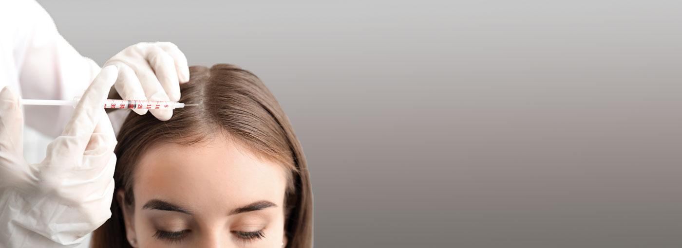 en qué consiste la mesoterapia capilar