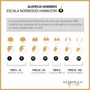 norwood hamilton escala alopecia masculina