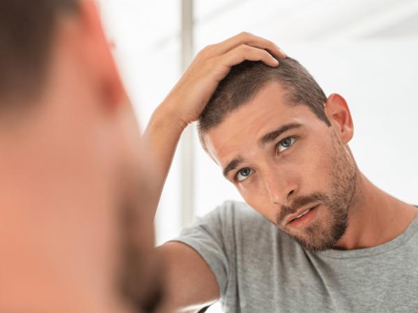 covid y alopecia