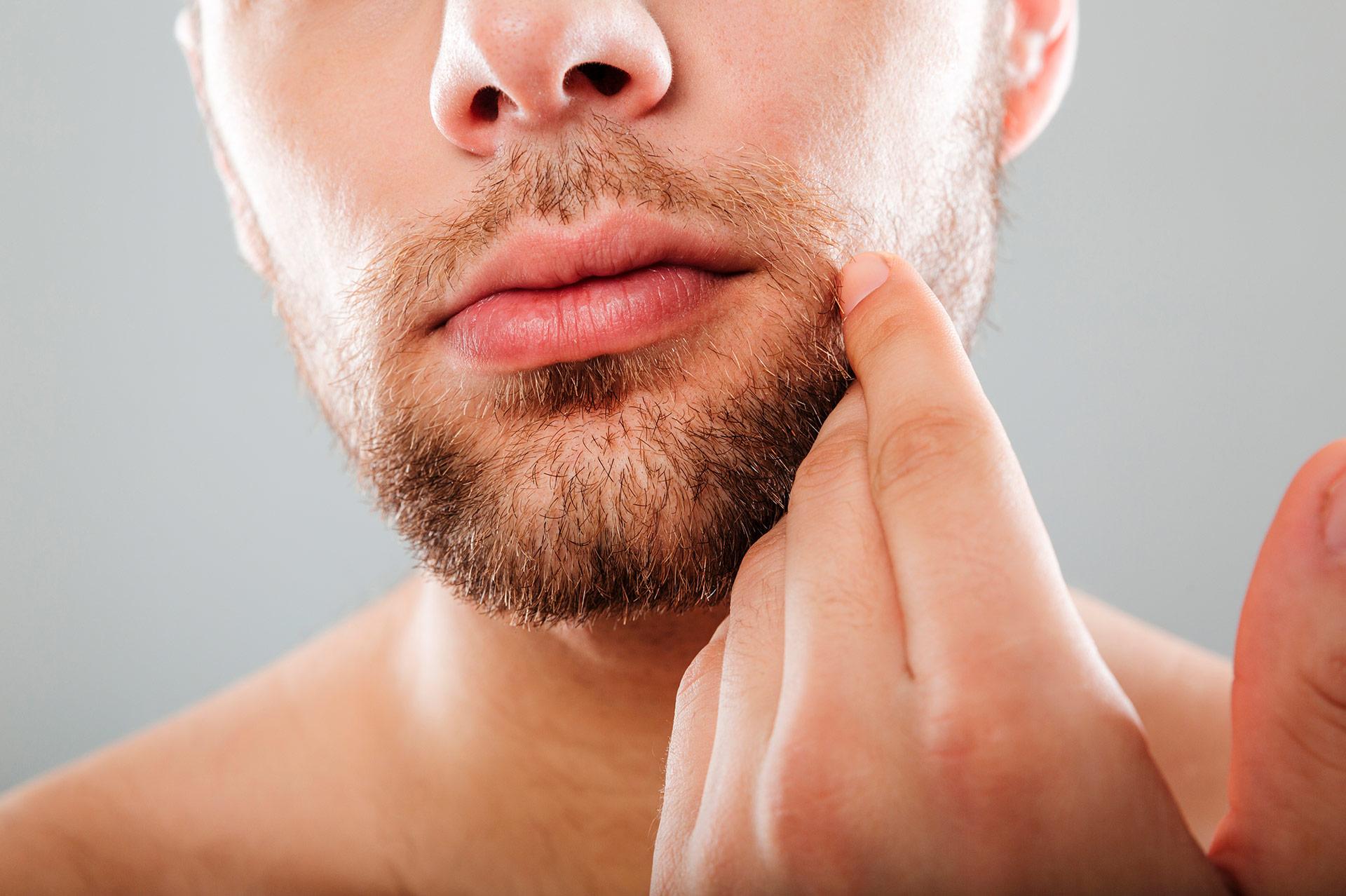 injerto barba insparya