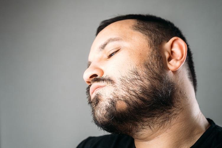 barba areata
