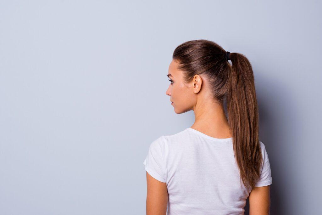 Alopecia por traccion