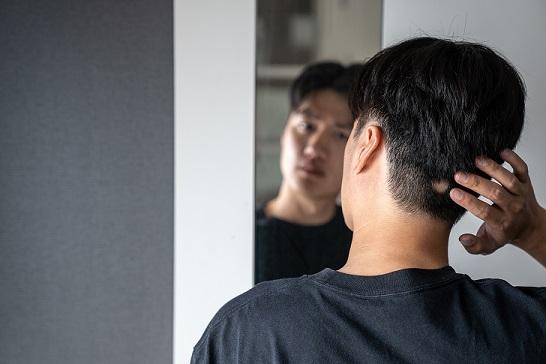 alopecia areata estres