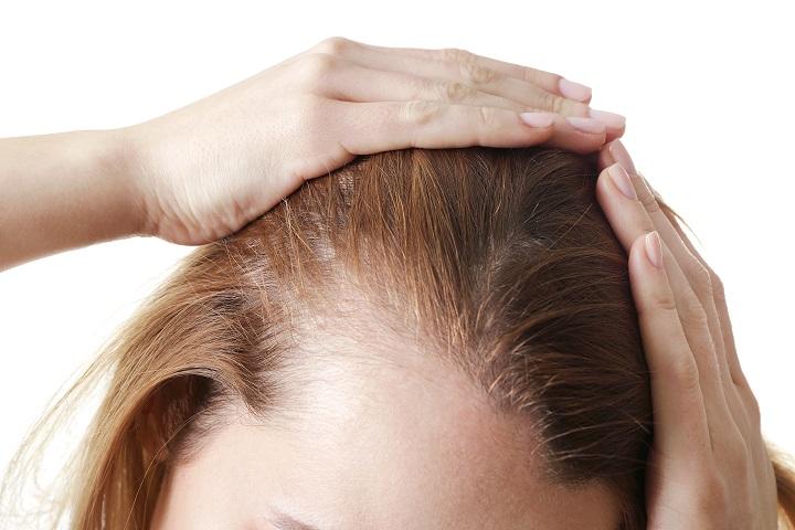 alopecia traumatica