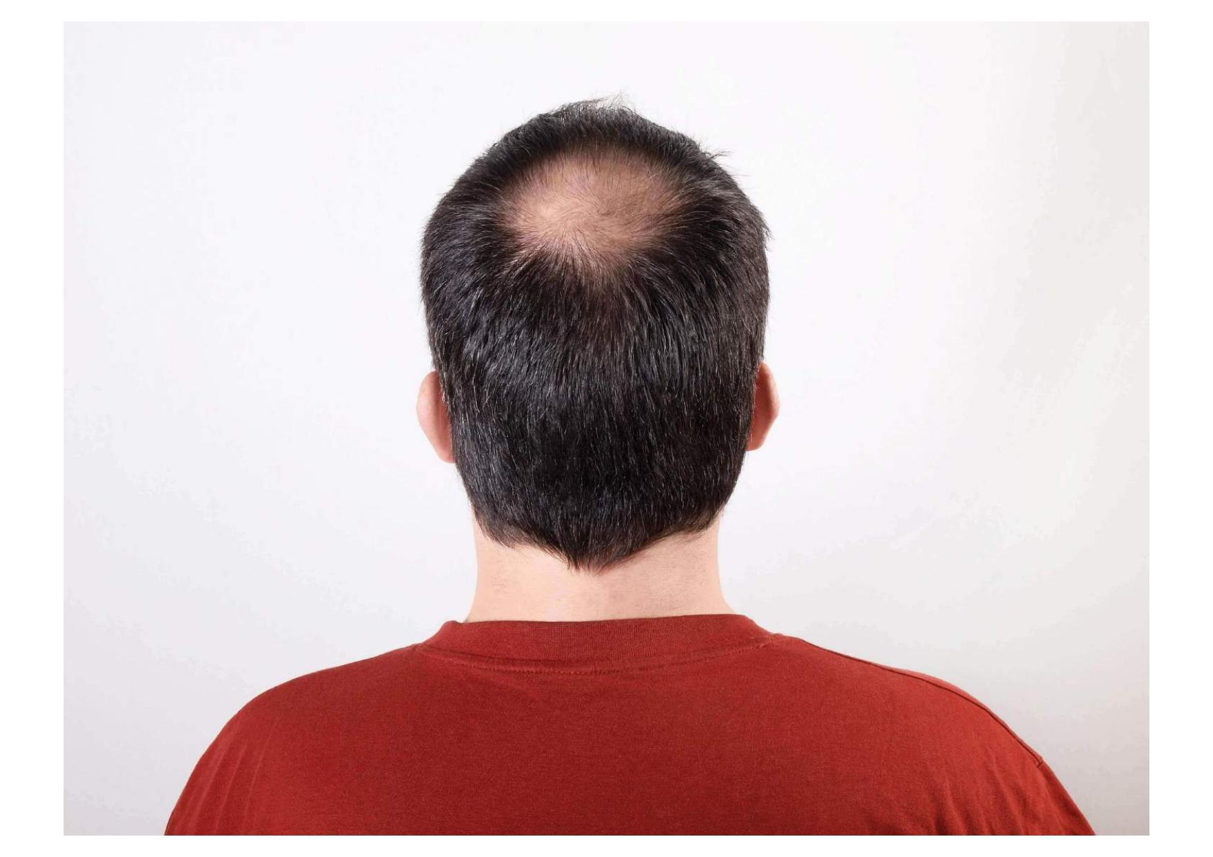 Remedios naturales alopecia